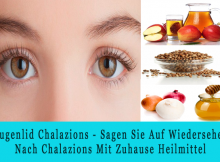 Augenlid Chalazions