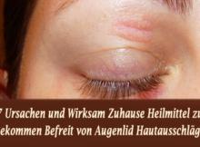 7 Ursachen und Wirksam Zuhause Heilmittel zu Bekommen Befreit von Augenlid Hautausschläge