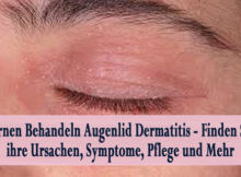 Lernen Behandeln Augenlid Dermatitis