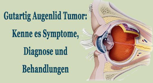 Gutartig Augenlid Tumor