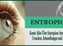 Kennt Alles Über Entropion - Symptome, Ursachen, Behandlungen und Mehr