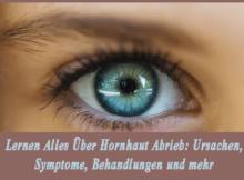 Lernen Alles Über Hornhaut Abrieb - Ursachen, Symptome, Behandlungen und mehr