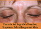 Psoriasis Auf Augenlid - Ursachen,Symptome, Behandlungen und Mehr