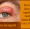 Wie Zu klar Blister Auf Augenlid Mit Natürlich Zuhause Heilmittel in 2-3 Wochen