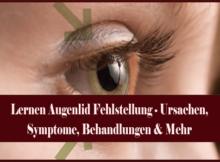 Lernen Augenlid Fehlstellung - Ursachen, Symptome, Behandlungen & Mehr