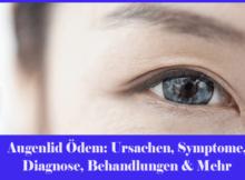 Augenlid Ödem - Ursachen, Symptome, Diagnose, Behandlungen & Mehr