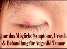 Kenne das Mögliche Symptome, Ursachen & Behandlung für Augenlid Tumor