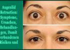 Augenlid Retraction - Symptome, Ursachen, Behandlungen, Damit verbundenen Risiken und mehr