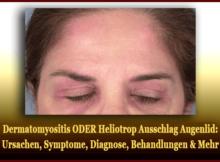 Dermatomyositis ODER Heliotrop Ausschlag Augenlid - Ursachen, Symptome, Diagnose, Behandlungen & Mehr