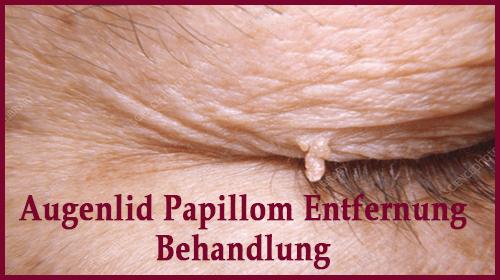 Behandlung des invertierten Papilloms