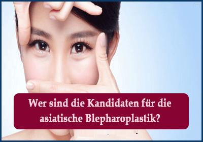 Wer sind die Kandidaten für die asiatische Blepharoplastik
